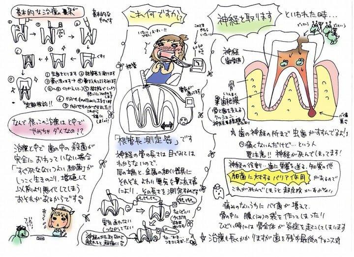 虫歯の治療 図解・グラフ・一覧・比較の画像とか