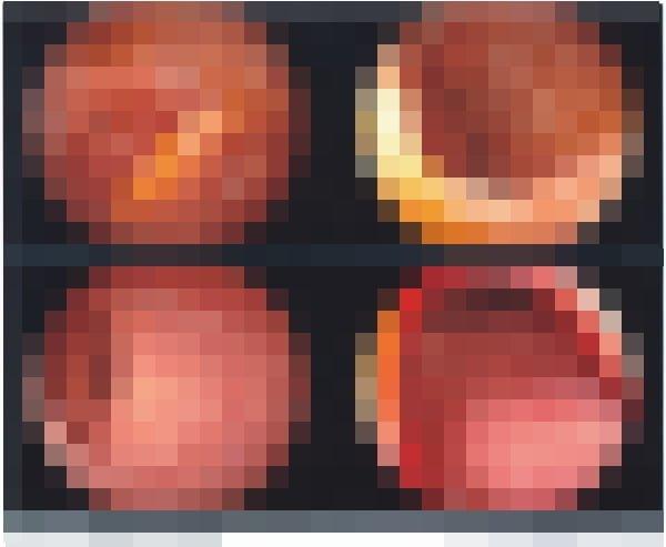 大腸内視鏡検査をしました